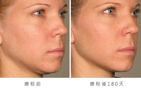 before_after_ultherapy_results_full-face23