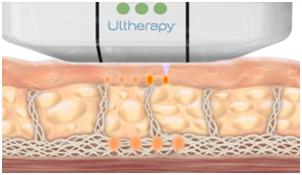 Ultherapy™分別於不同皮膚深度刺激膠原蛋白增生